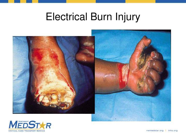 Electrical Burn Injury