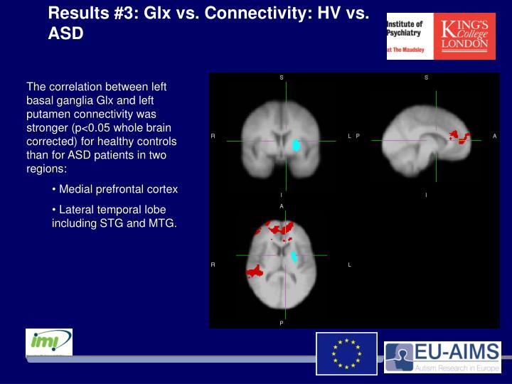 Results #3: Glx vs. Connectivity: HV vs. ASD