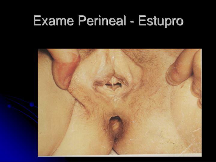 Exame Perineal - Estupro