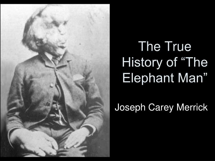 "The True History of ""The Elephant Man"""