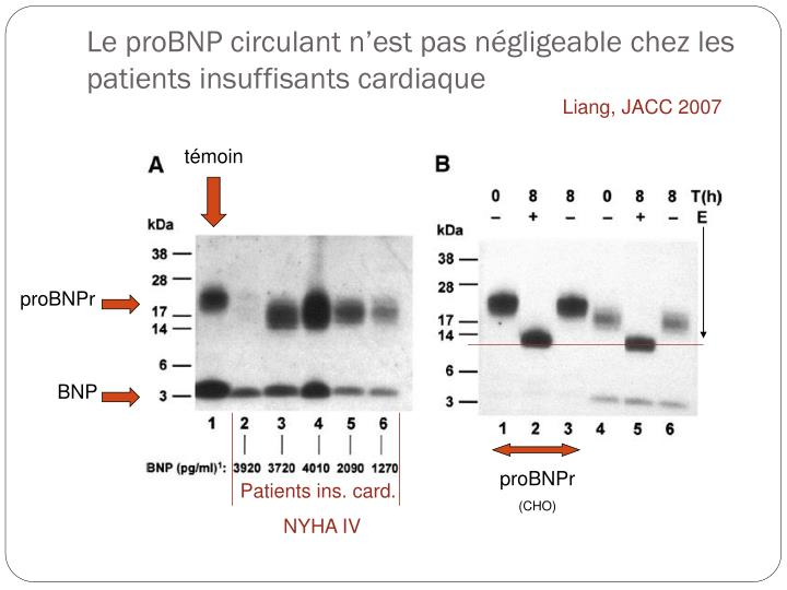 Le proBNP circulant n'est pas négligeable chez les patients insuffisants cardiaque