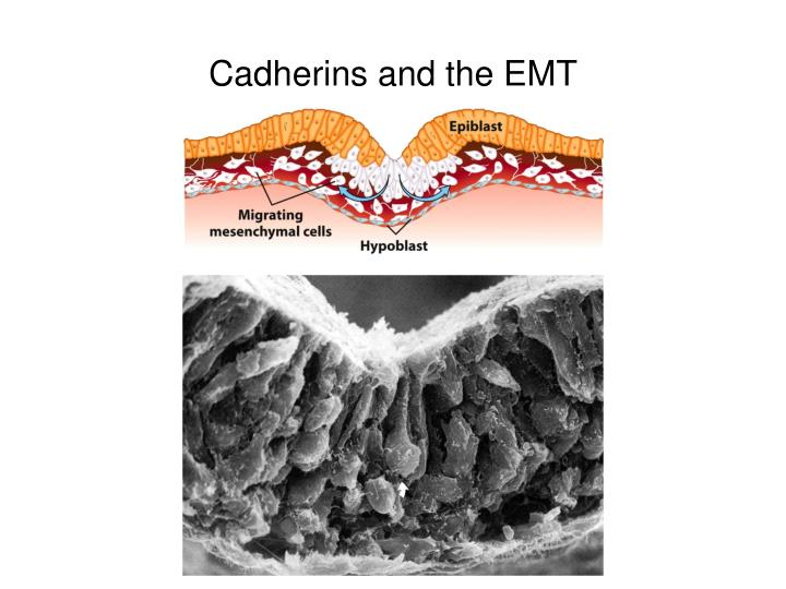 Cadherins and the emt