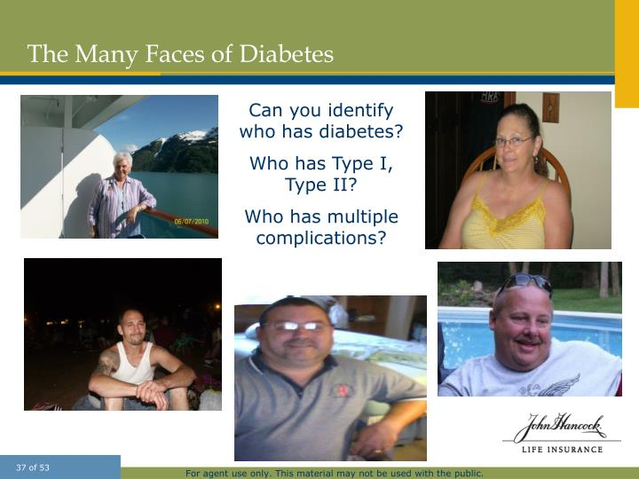 The Many Faces of Diabetes