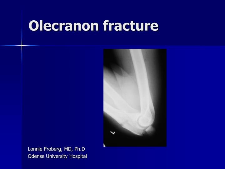 Fracture ppt.